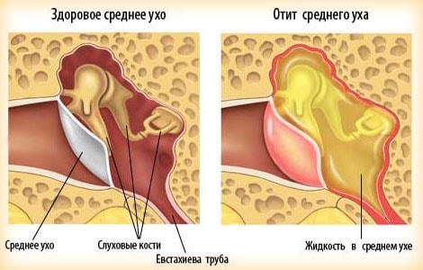 Отит среднего уха - симптомы и лечение у взрослых, как лечить