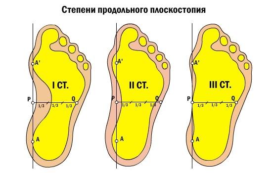 Изображение 3: Плоскостопие - клиника Семейный доктор