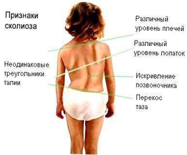 Сколиоз 2 степени упражнения на вытяжение