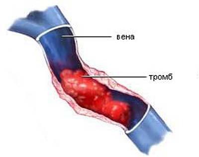 Болит вена на ноге после наркоза