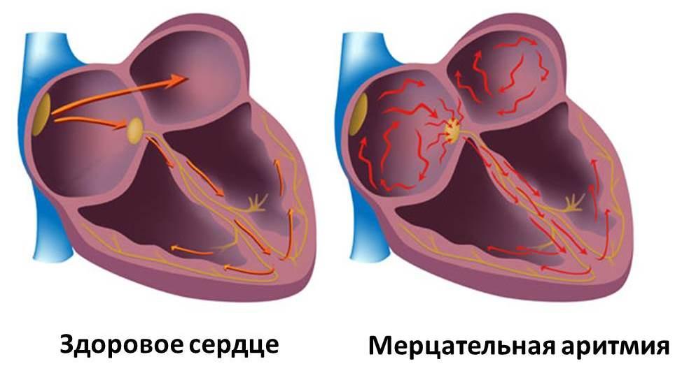 Изображение 1: Аритмия - клиника Семейный доктор