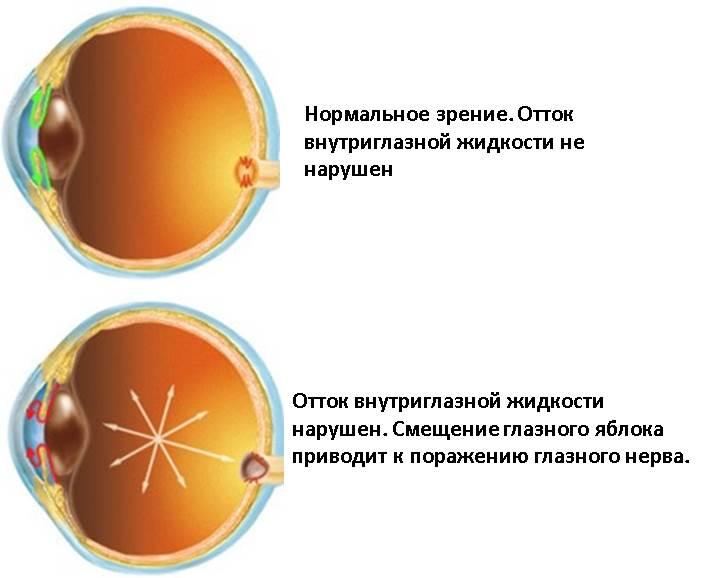 глазное давление симптомы что это такое фото