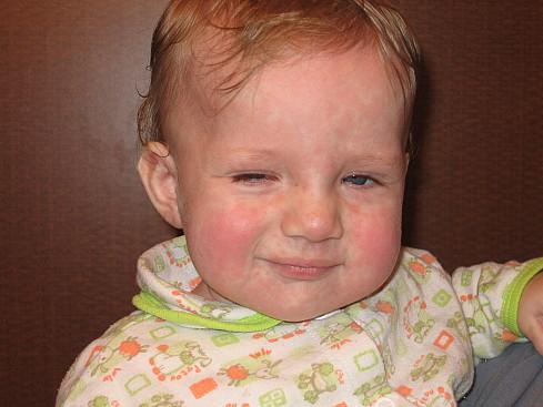 Изображение 2: Сыпь - клиника Семейный доктор