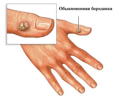 Изображение 1: Бородавки - клиника Семейный доктор