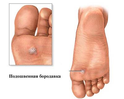 Изображение 3: Бородавки - клиника Семейный доктор