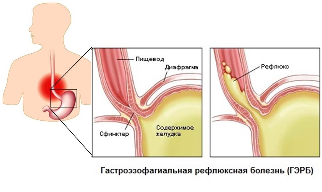 Гастроэзофагеальная рефлюксная болезнь - ГЭРБ. Причины рефлюкса