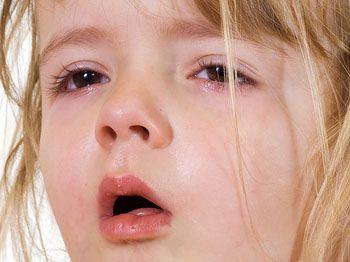 Какой врач лечит сухой кашель thumbnail