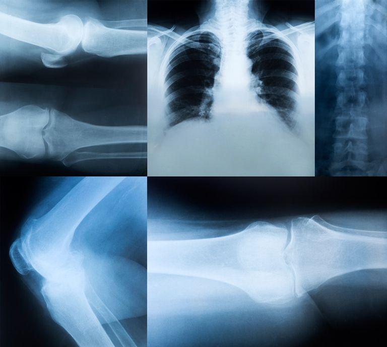 Где можно сделать рентген без направления