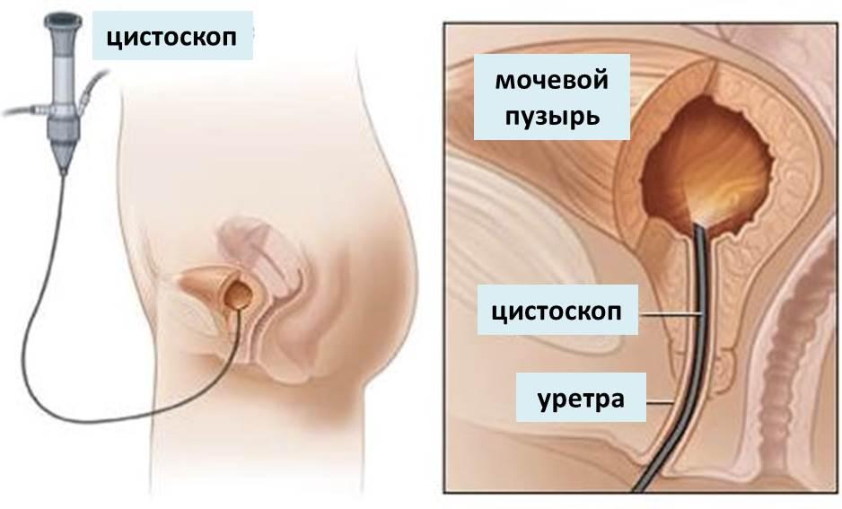 Эндоскопия мочевого пузыря у мужчин
