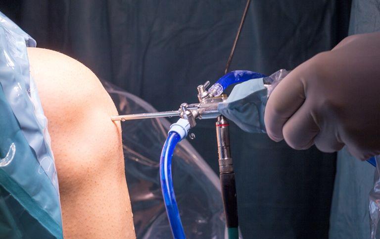 Дмс операция на коленном суставе thumbnail