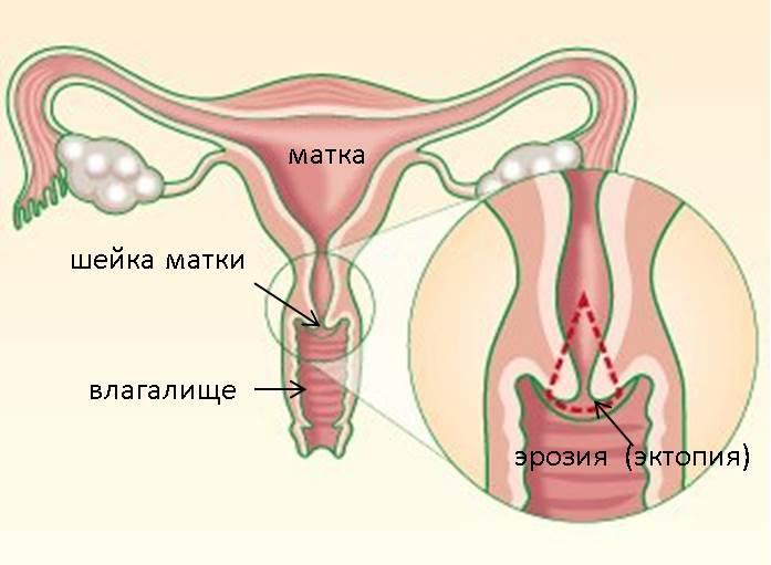 Проникновение в матку женщины видео фото 521-273