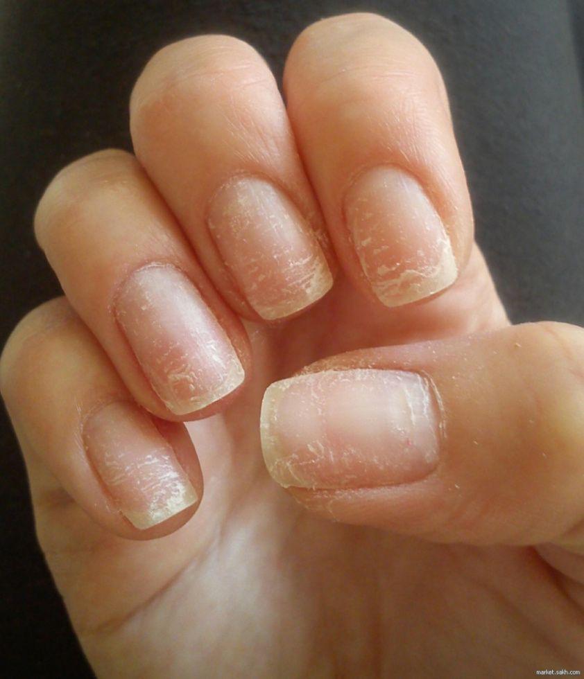 Обычно ногти у меня начинают слоиться весной, что всегда связывала с недостатком витаминов в организме.