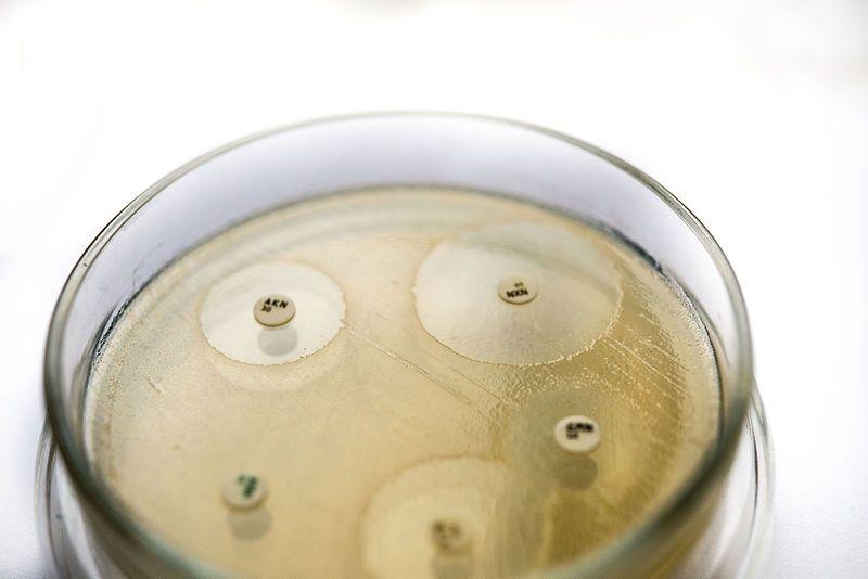 Что значит чувствительность к антибиотикам s?