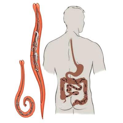 Симптомы заражения паразитами от рыб