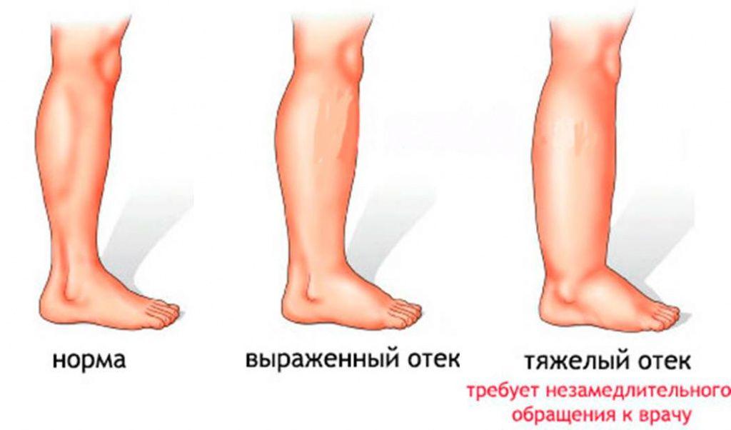 Отчего может отекать голеностопный сустав как вылечить ушиб сустава большого пальца ноги